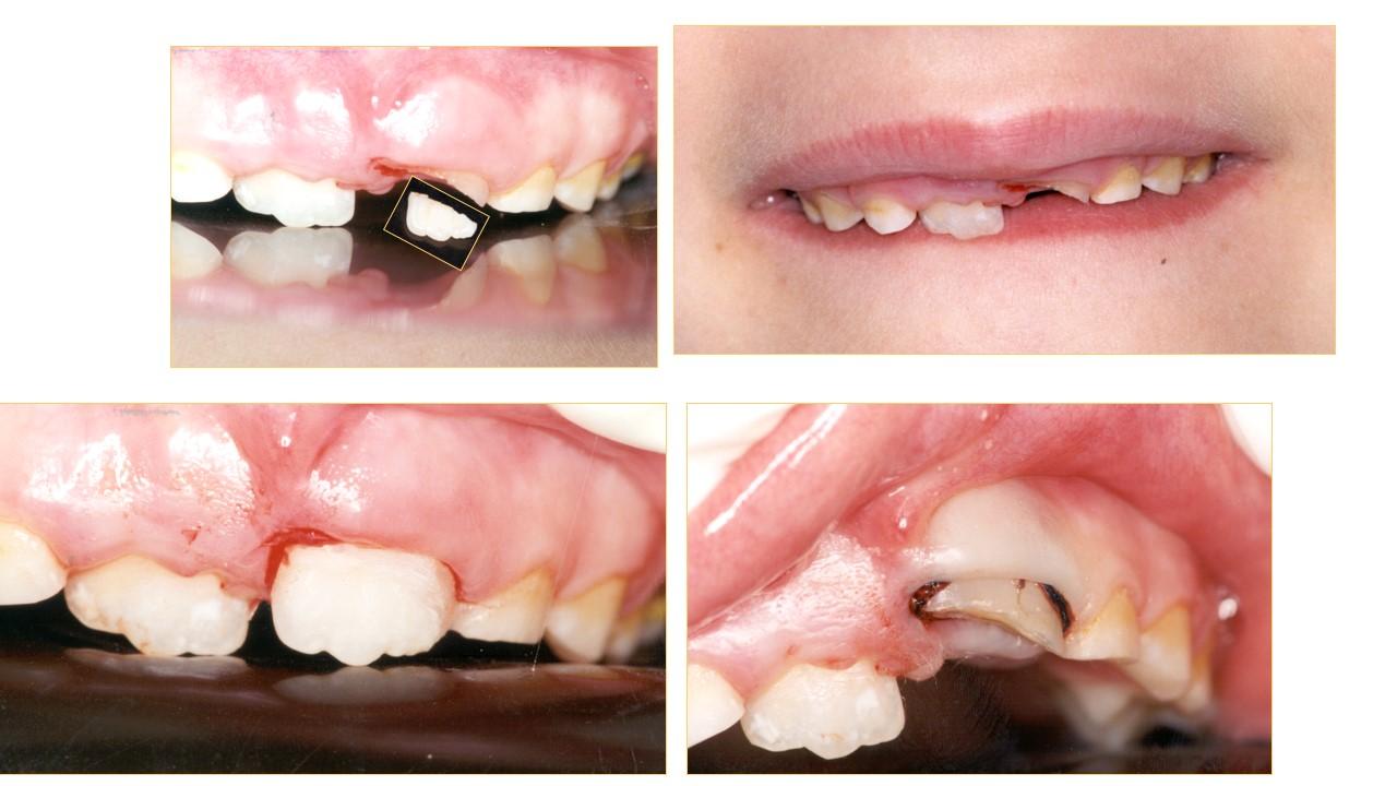 """טיפול בחבלות בשיניים אצל ד""""ר מלכה אשכנזי"""