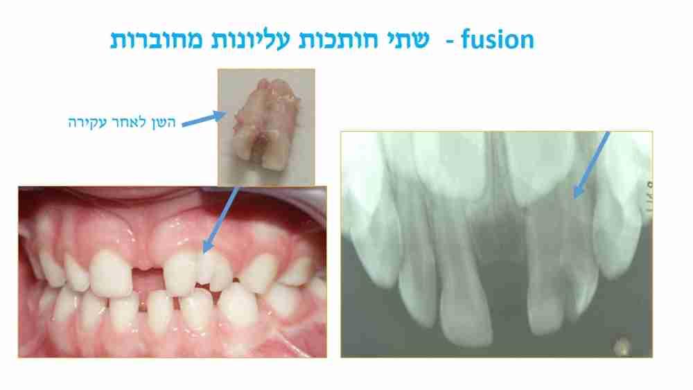 הפרעות בגודל השיניים אצל ילדים - שתי חותכות מחוברות - דר מלכה אשכנזי