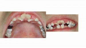 הפרעות בנשירת שיניים אצל ילדים - דר מלכה אשכנזי -1