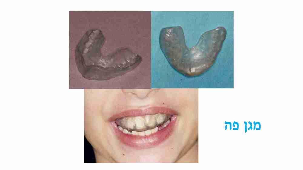מניעת חבלות בשיניים לילדים - מגן פה - דר מלכה אשכנזי