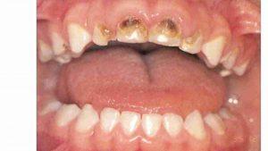 עששת הגיל הרך - דר מלכה אשכנזי מומחית טיפול שיניים לילדים