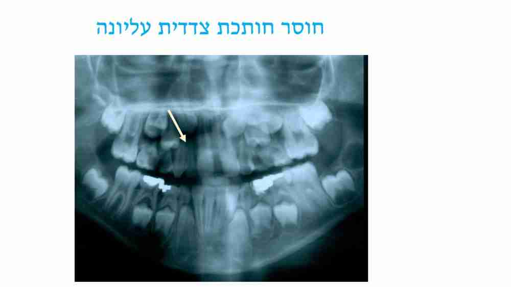 הפרעות במספר השיניים אצל ילדים - חוסר חותכת - דר מלכה אשכנזי
