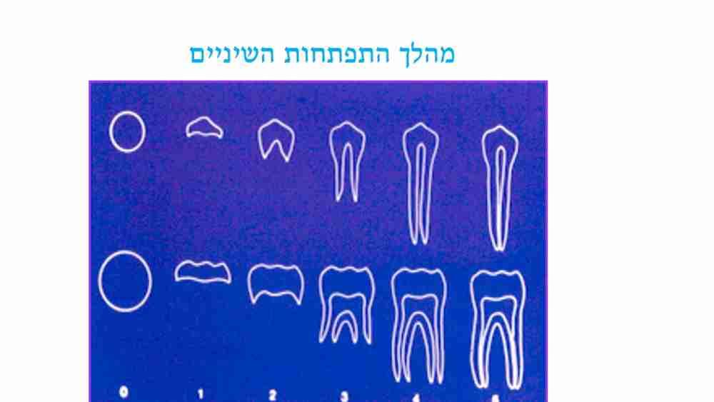טיפול שיניים בתינוקות - דר מלכה אשכנזי