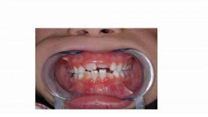 מחלות חניכיים (פריודונטליות) - דר מלכה אשכנזי מומחית טיפול שיניים לילדים