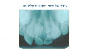 עודף שיניים אצל ילדים - עודף שתי חותכות - דר מלכה אשכנזי