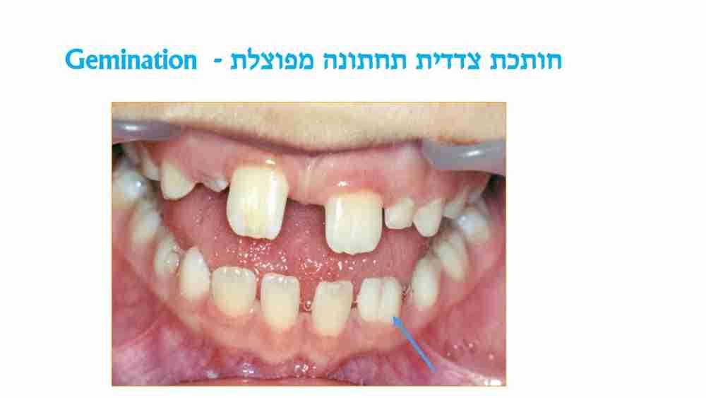 הפרעות בגודל השיניים אצל ילדים - חותכת מפוצלת - דר מלכה אשכנזי