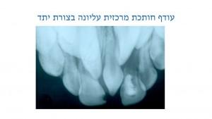 עודף שיניים אצל ילדים - עודף חותכת מרכזית - דר מלכה אשכנזי