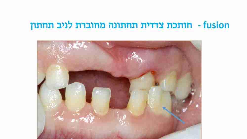 הפרעות בגודל השיניים אצל ילדים - חותכת תחתונה מחוברת - דר מלכה אשכנזי