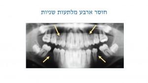 טיפול שיניים בתינוקות - חוסר מלתעות - דר מלכה אשכנזי