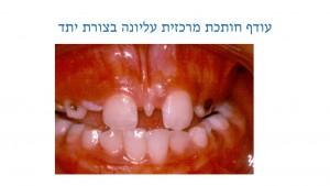 עודף שיניים אצל ילדים - עודף חותכת - דר מלכה אשכנזי